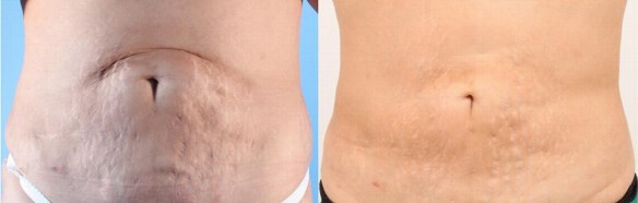 Skin Needling Treatment   Cosmetic Injectables Victoria