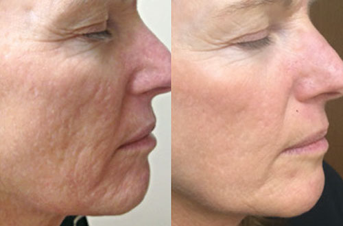 Skin Needling Treatment | Cosmetic Injectables Victoria